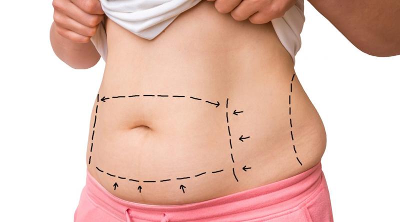Internação em clínica de obesidade ou cirurgia bariátrica?