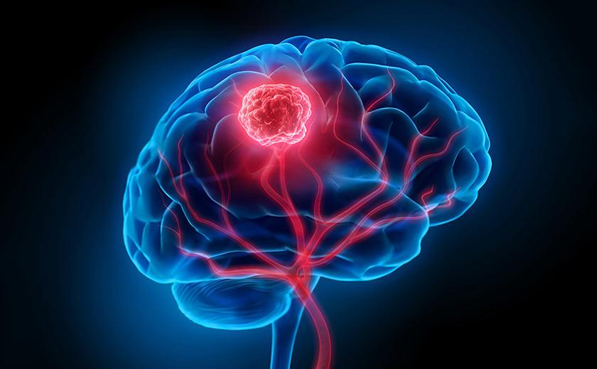 Read more about the article Uso do Canabidiol em tumor cerebral glioblastoma